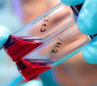 Immunothérapie: quand des cellules cancéreuses rencontrent des tueuses en série